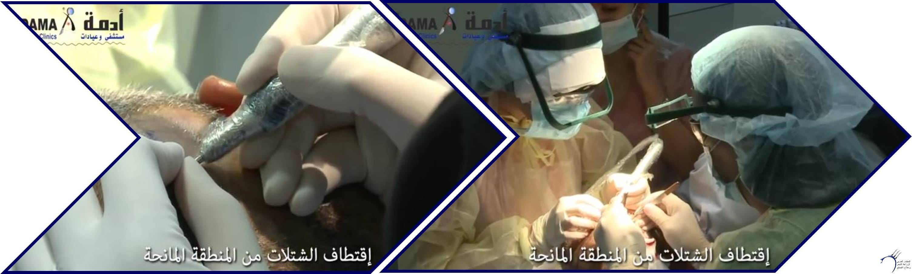 مشاكل الصلع وزراعة الشعر للدكتور www.hairarab.com30c5