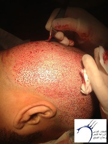 أقدم تجربـتي لزراعة الشعر مركـز www.hairarab.com3242