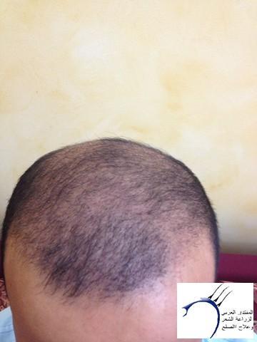 أقدم تجربـتي لزراعة الشعر مركـز www.hairarab.com325f