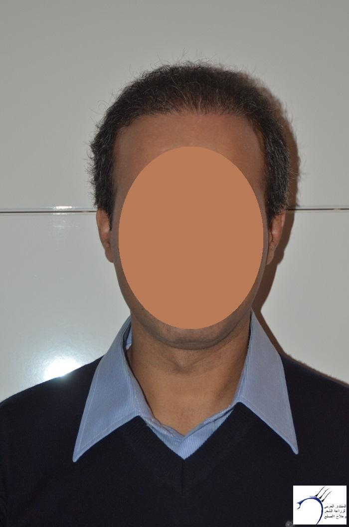 اليكم نتيجة زراعتي الاولى أشهر www.hairarab.com3320