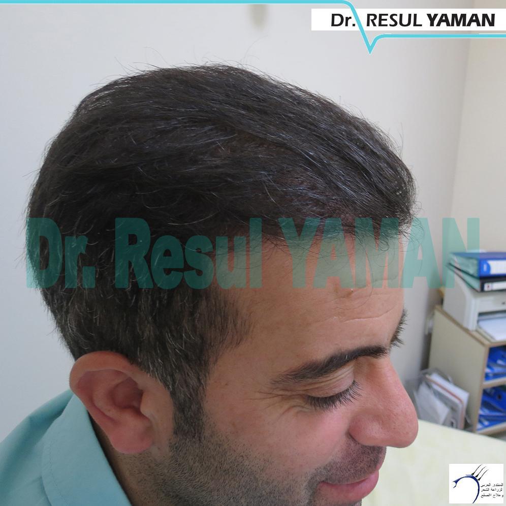 تجربة بالصور لزراعة الشعر