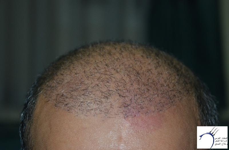 اليكم نتيجة زراعتي الاولى نتيجة www.hairarab.com3504