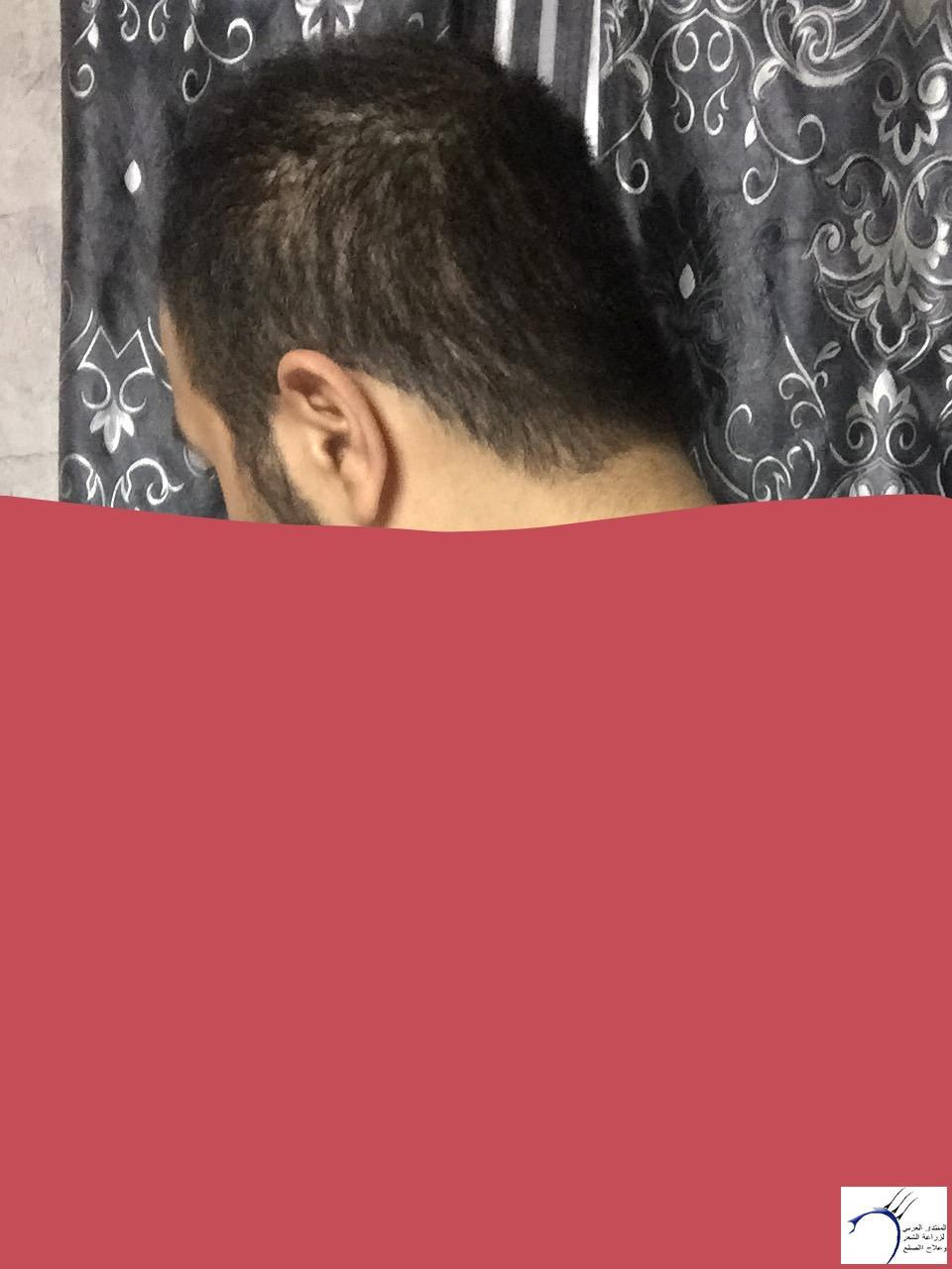 تجربتي رويال تحديث الشهر الرابع www.hairarab.com3558