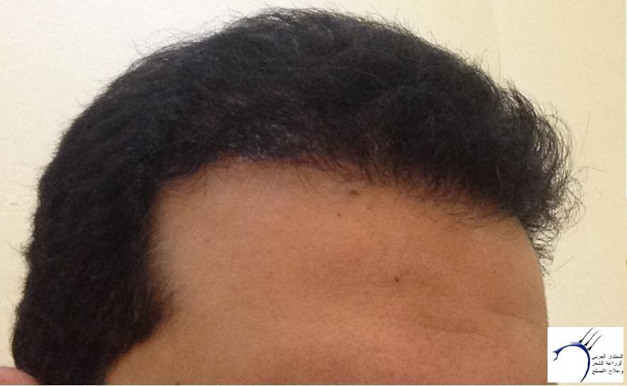 تجربتي لزراعة الشعر الدكتور Tayfun www.hairarab.com3624