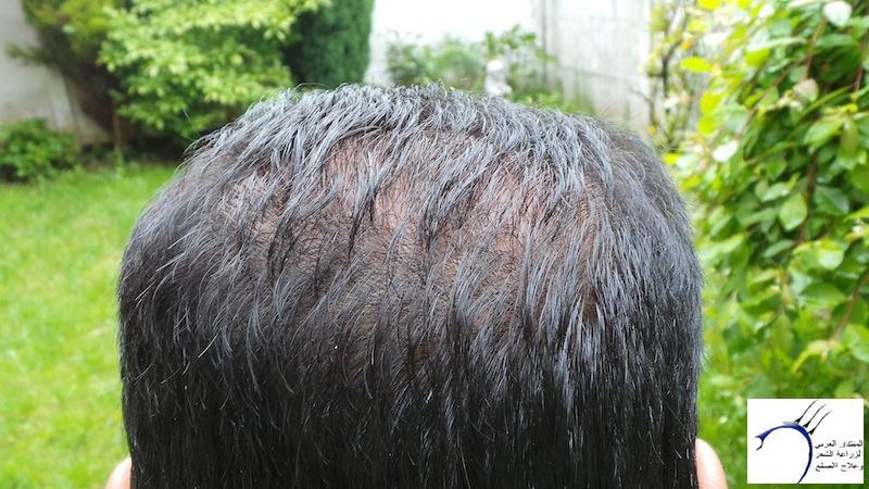تجربتي لزراعة الشعر تركيا الدكتور www.hairarab.com36c8