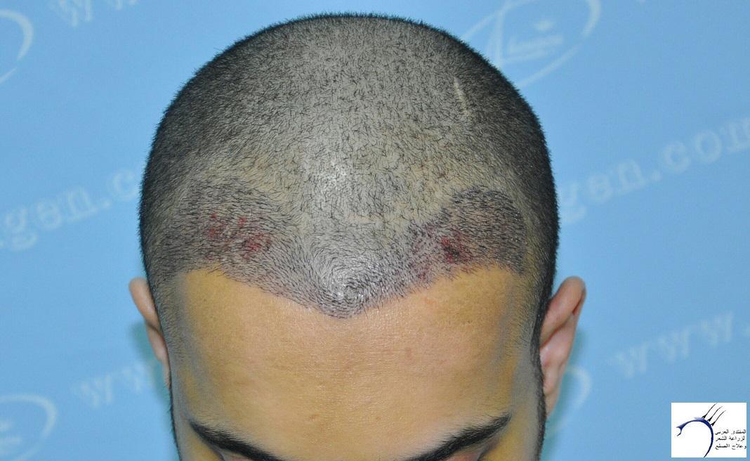 (تحديث www.hairarab.com37cb
