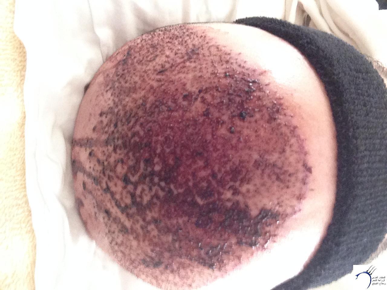 زراعتي الأخصائي محمد جوتشلو بتاريخ www.hairarab.com38bb