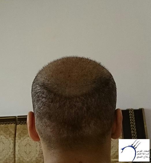 www.hairarab.com38c6