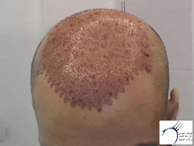تجربتي مستشفى اتوجنميد التحديث واضافة www.hairarab.com392e