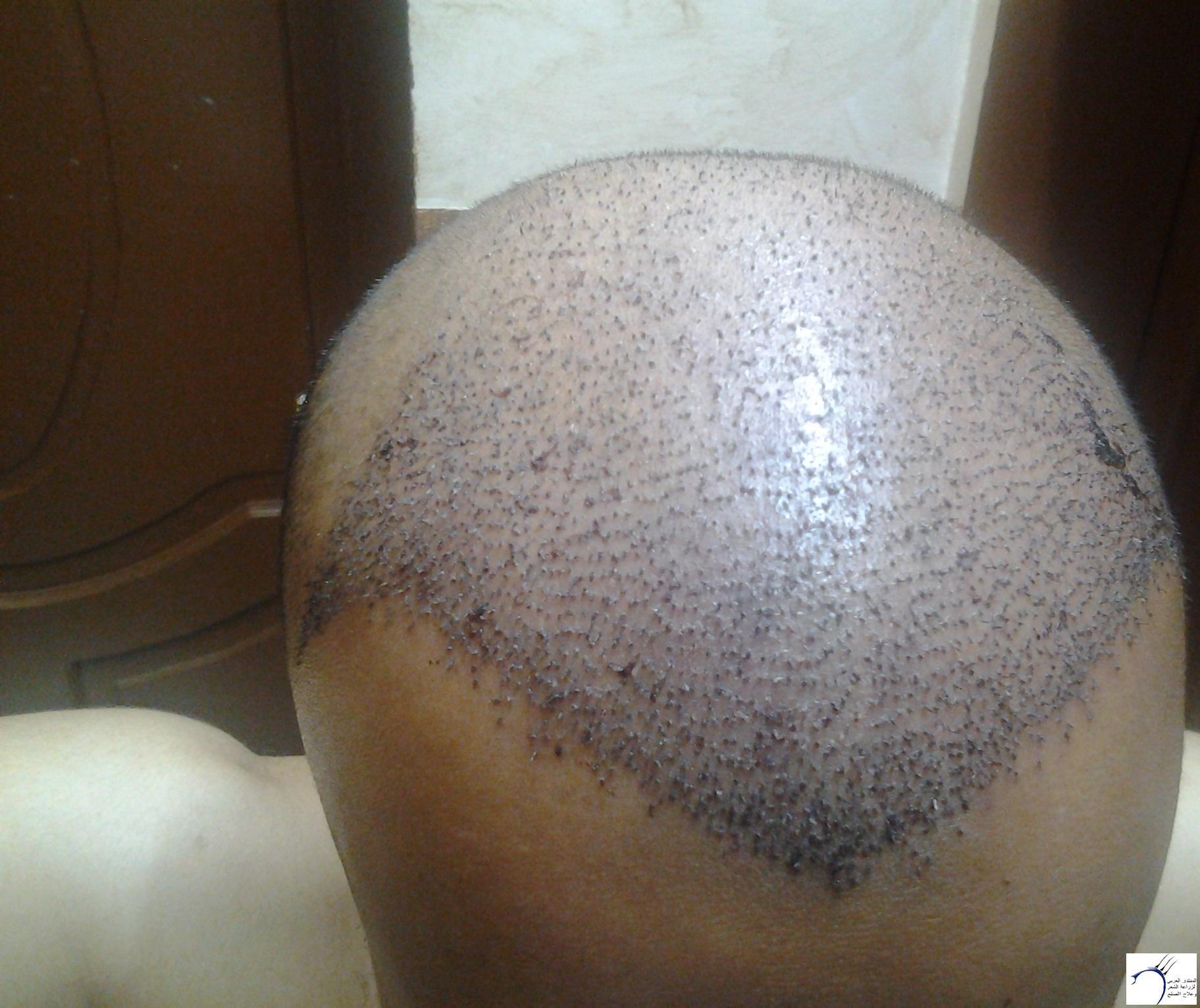 الدكتور (تحديث السابع) www.hairarab.com395e