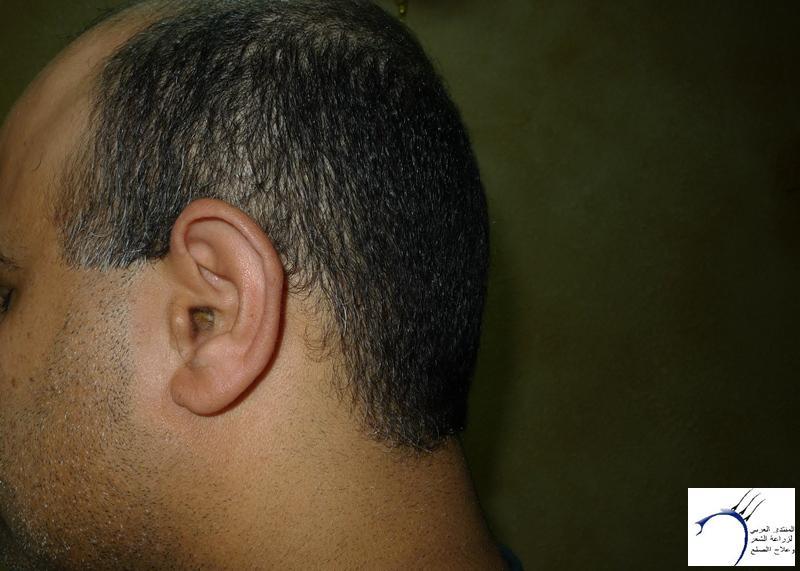 استقسار www.hairarab.com3a1a