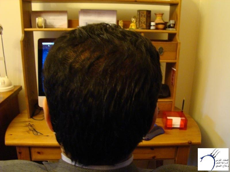 تجربتي لزراعة الشعر تركيا الدكتور www.hairarab.com3a9f