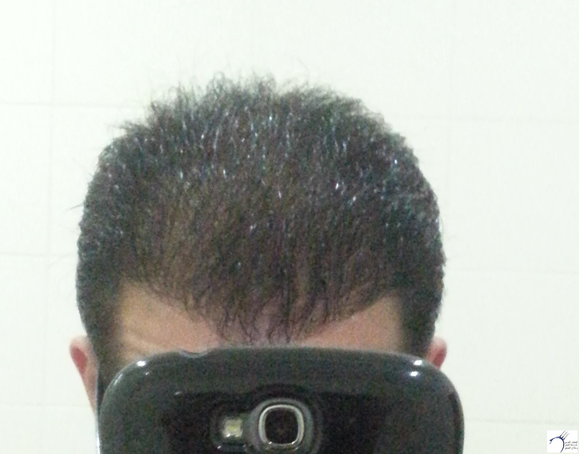 www.hairarab.com3bea