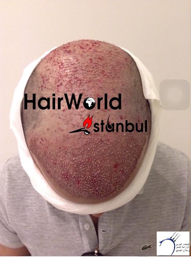 التجارب تركيا(مركز الهولندي) www.hairarab.com3c68