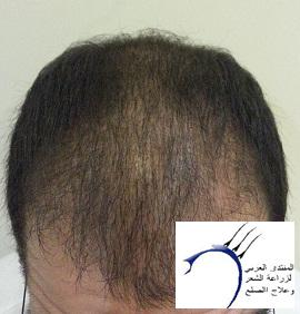www.hairarab.com3e39
