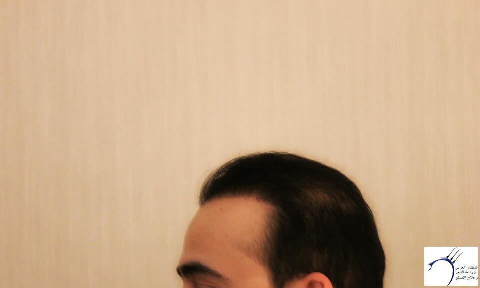 www.hairarab.com405f