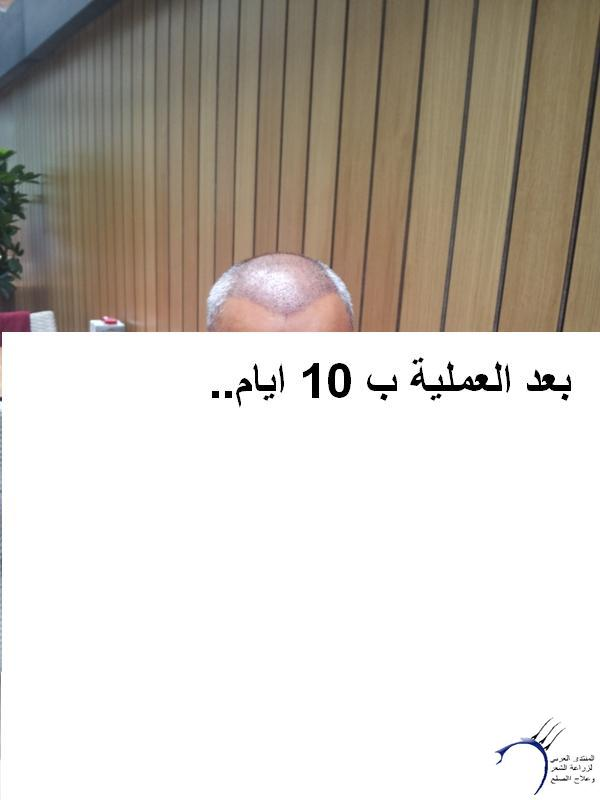 زراعتي الدكتور محمد جوتشلو- وكما www.hairarab.com40c5