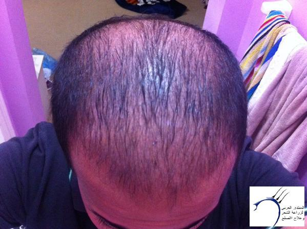 www.hairarab.com414d