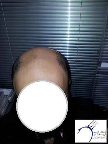 تجربتي تركيا الدكتور سركان أشهر www.hairarab.com419f