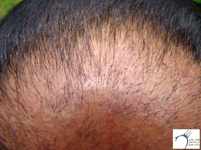 تجربتي لزراعة الشعر تركيا الدكتور www.hairarab.com426e