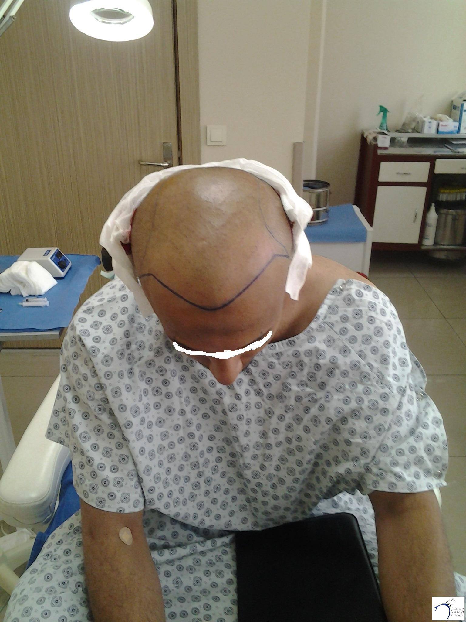 الدكتور (تحديث السابع) www.hairarab.com429d
