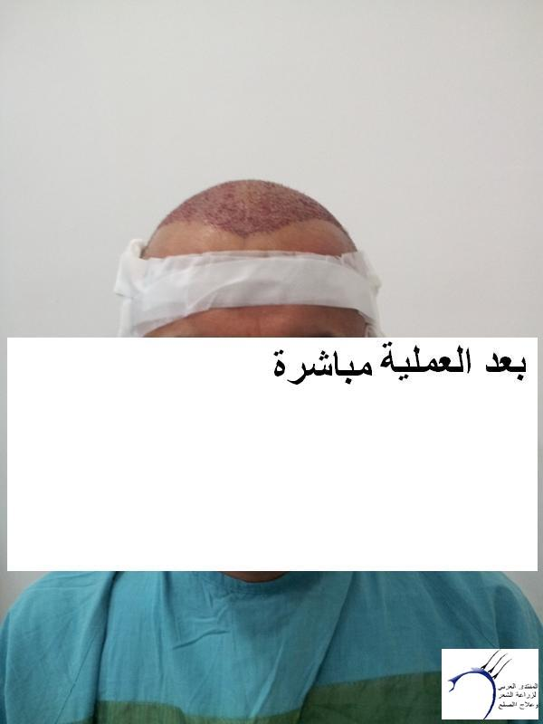 زراعتي الدكتور محمد جوتشلو- وكما www.hairarab.com43b0