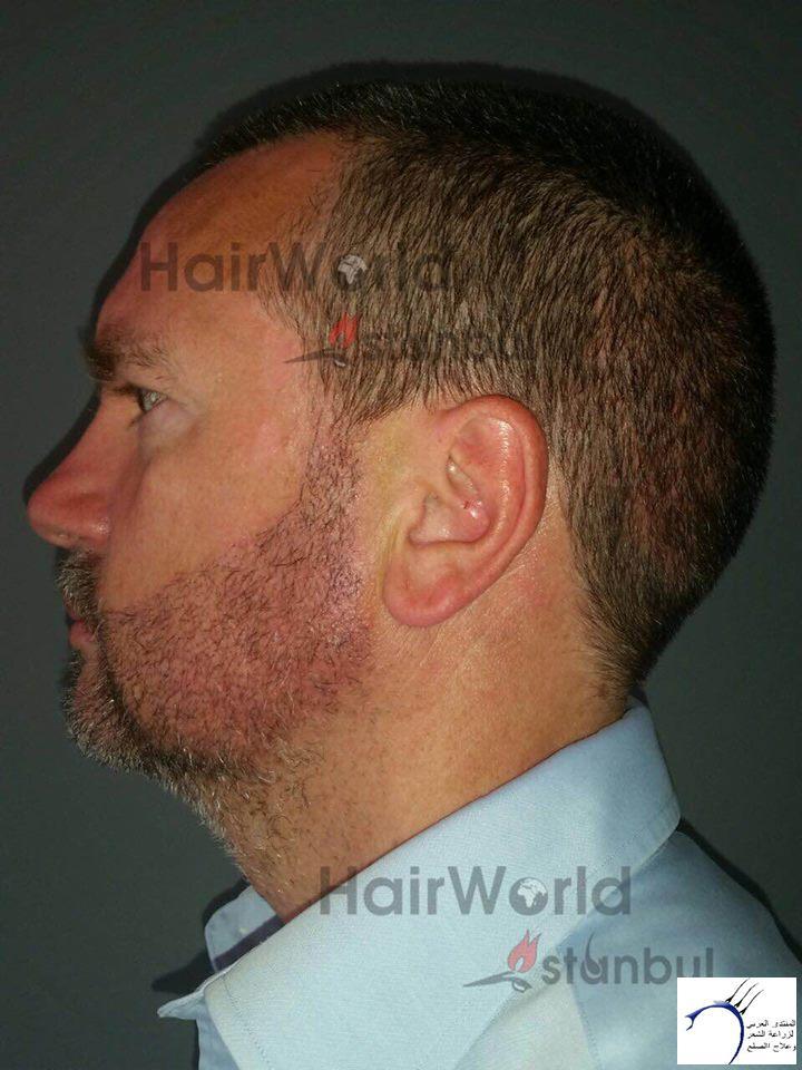 www.hairarab.com43e3