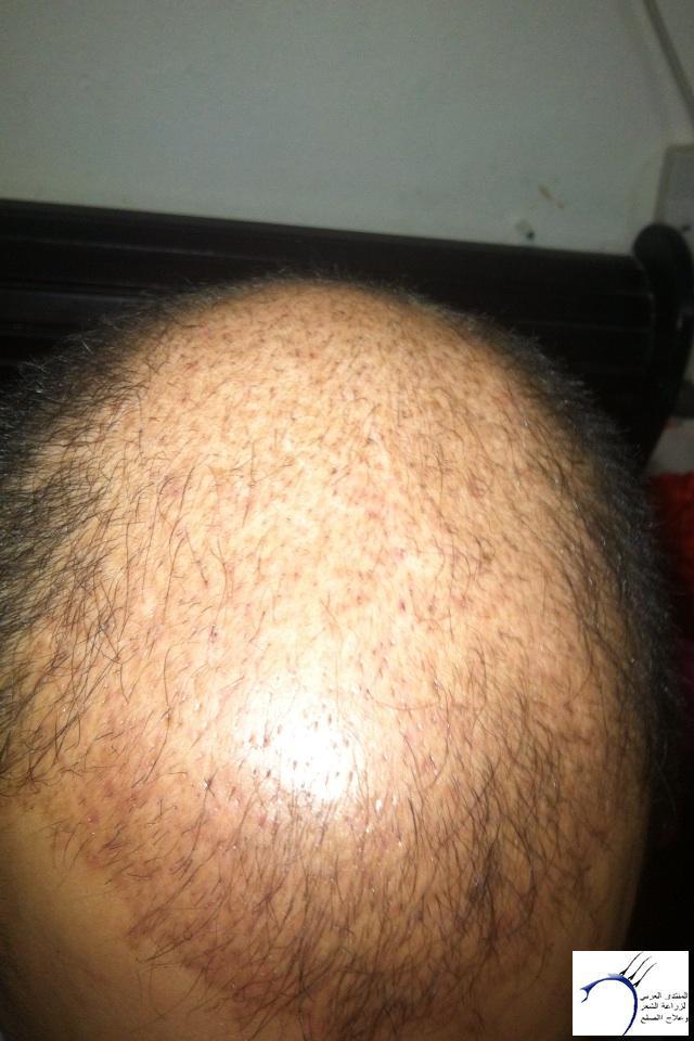 (التحديث الأول شهرين تفاصيل زراعتي www.hairarab.com4433