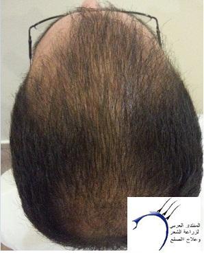www.hairarab.com44d2