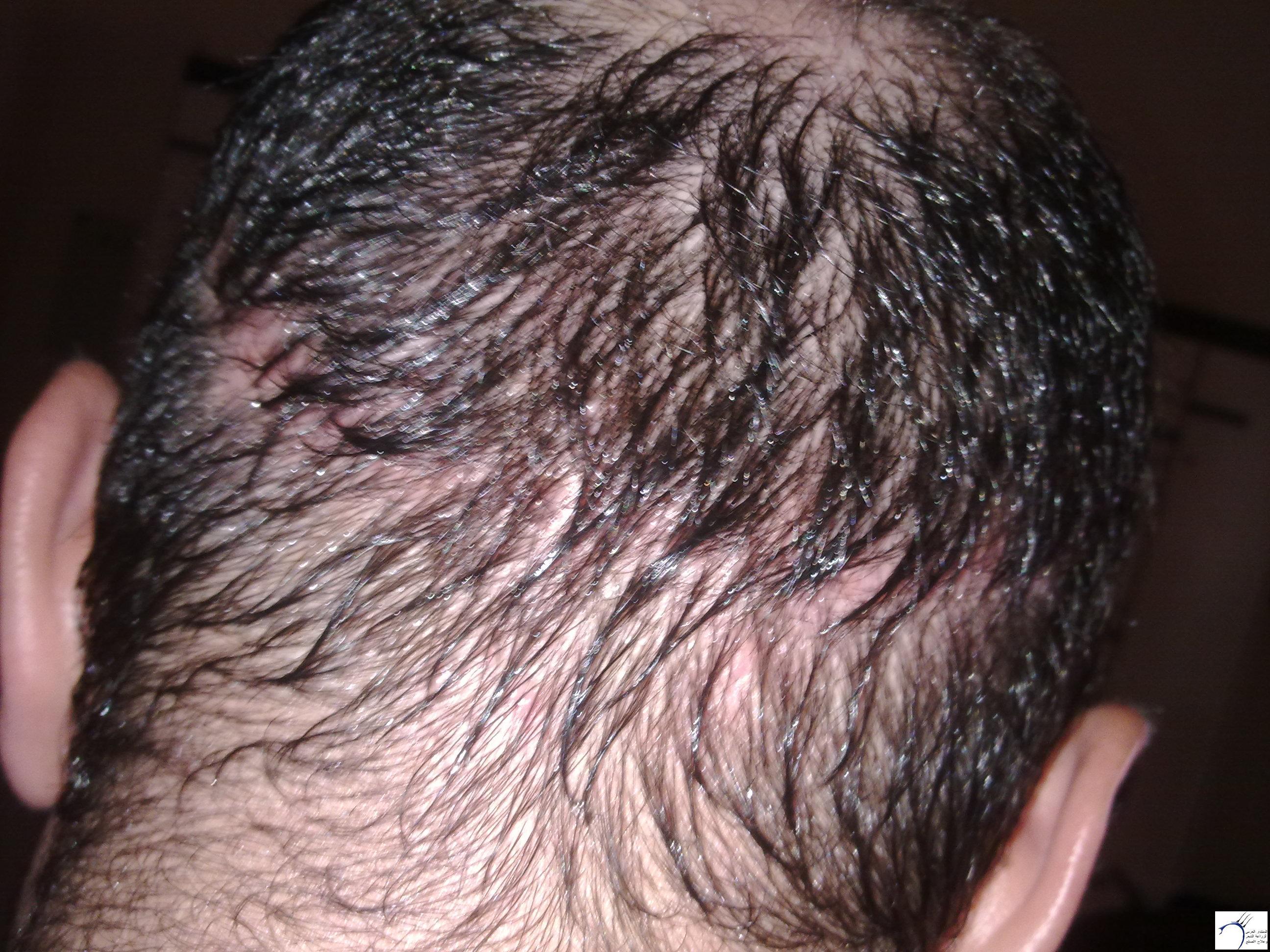 التفاصيل www.hairarab.com453f