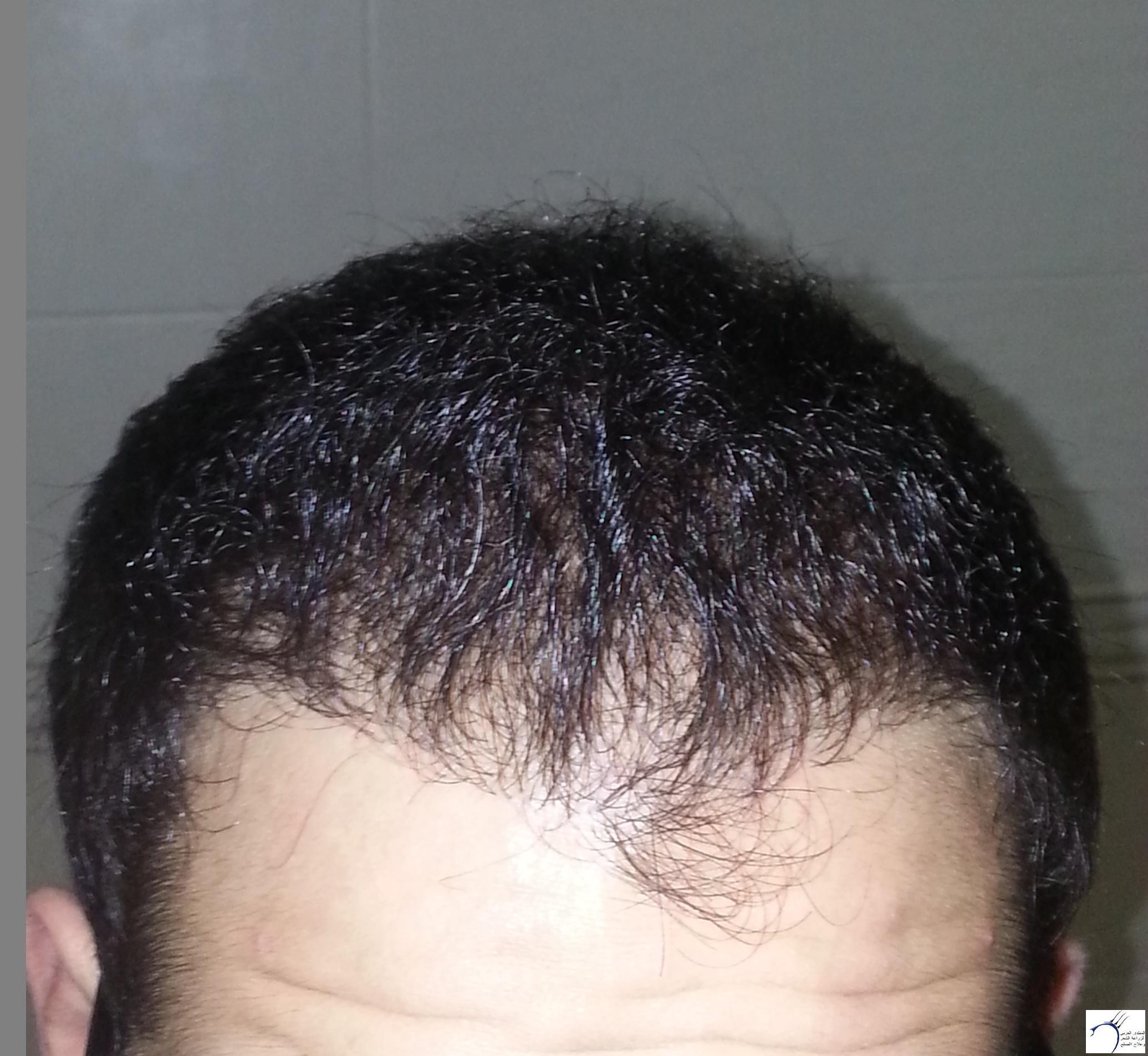 www.hairarab.com45de
