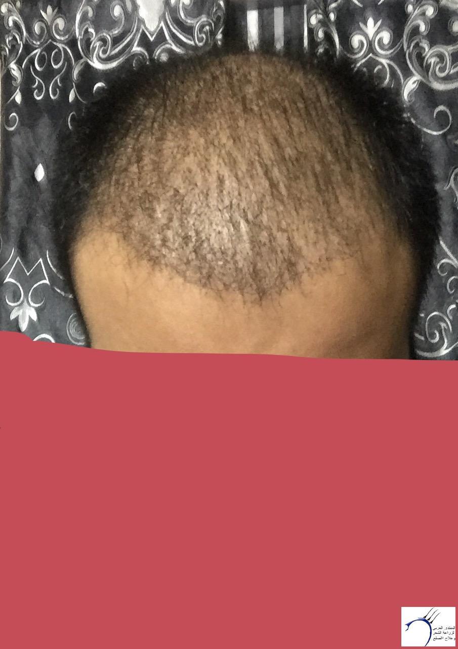 تجربتي رويال تحديث الشهر الرابع www.hairarab.com46a0