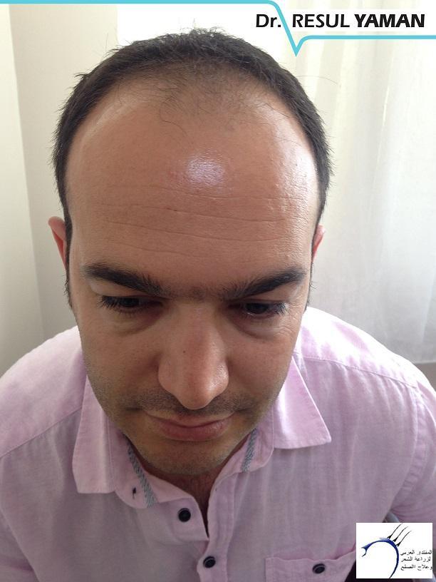 نتيجة زراعة 3380 بصيلة أشهر www.hairarab.com47a0