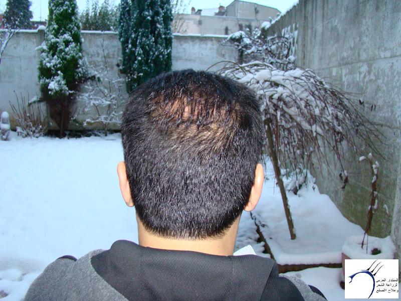 تجربتي لزراعة الشعر تركيا الدكتور www.hairarab.com4aeb