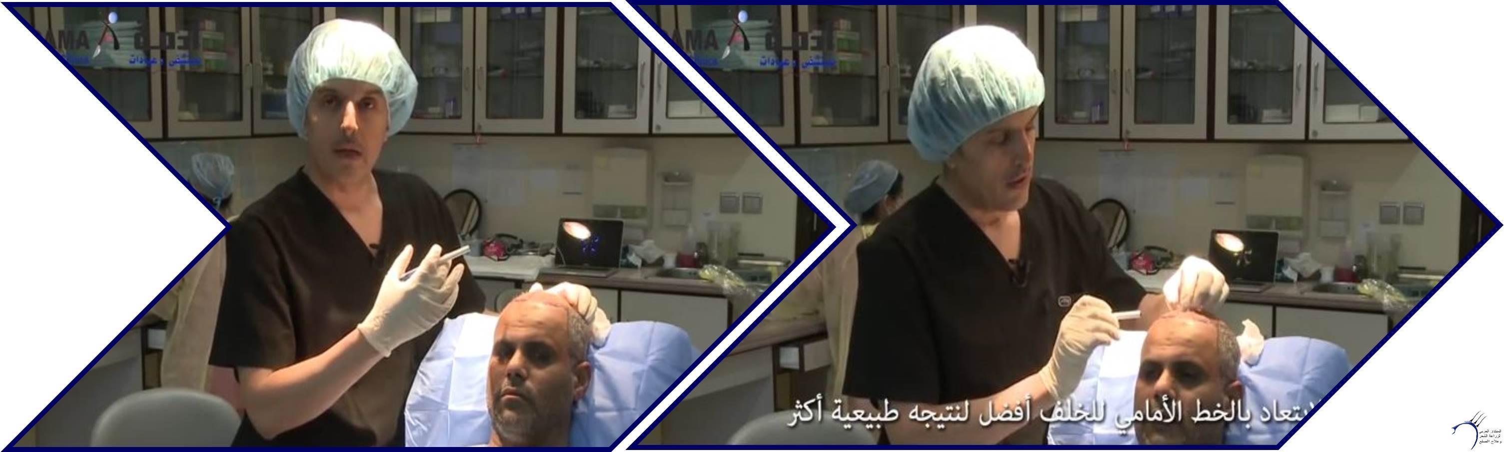 مشاكل الصلع وزراعة الشعر للدكتور www.hairarab.com4d27