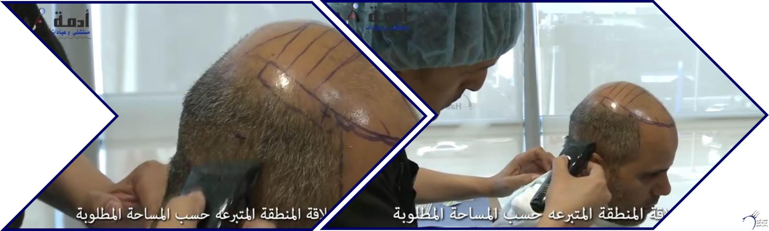 مشاكل الصلع وزراعة الشعر للدكتور www.hairarab.com4d37