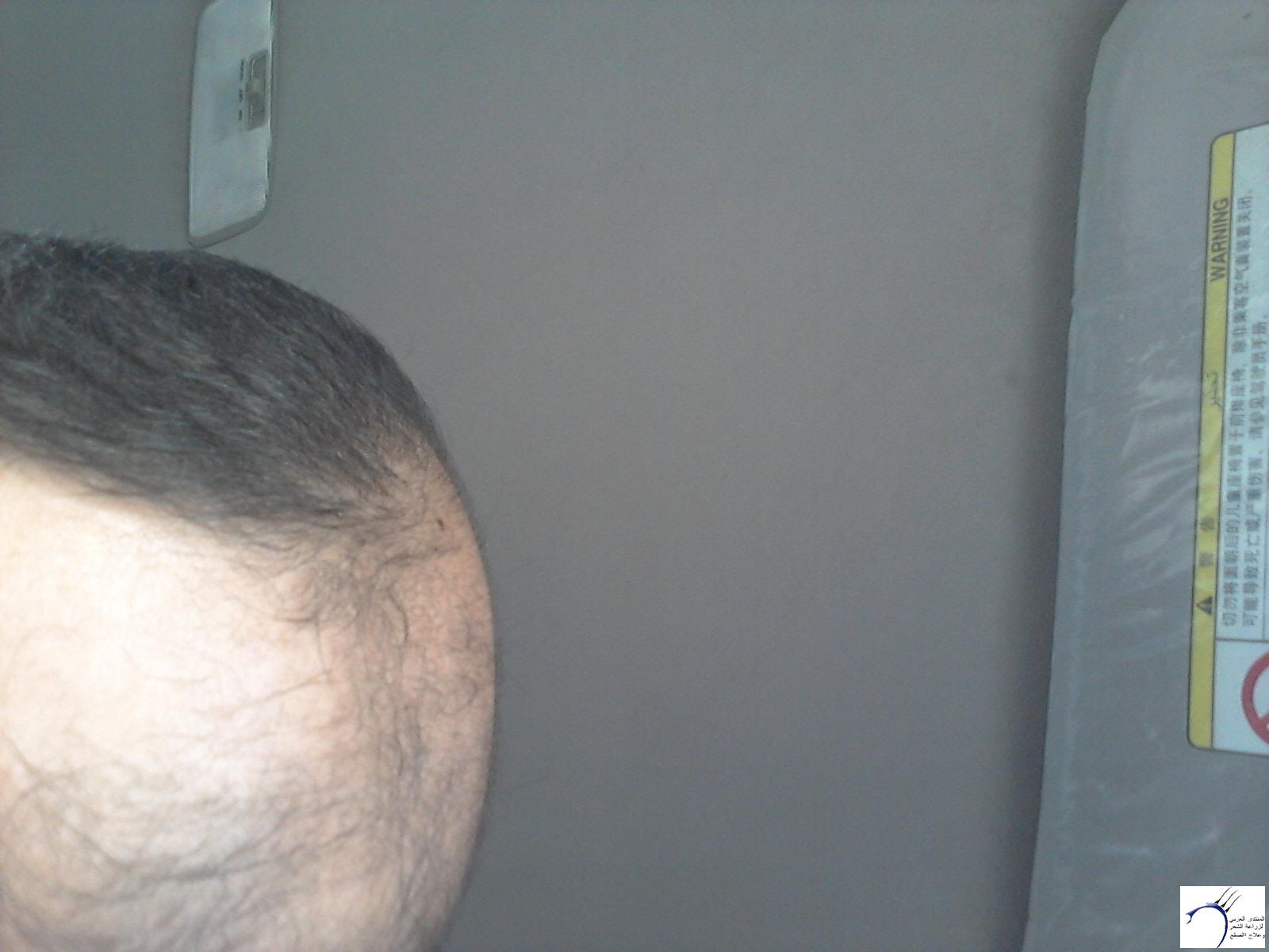 (تحديث بعدسنة)تجربتي بالصور الاخصائي محمد www.hairarab.com4df3