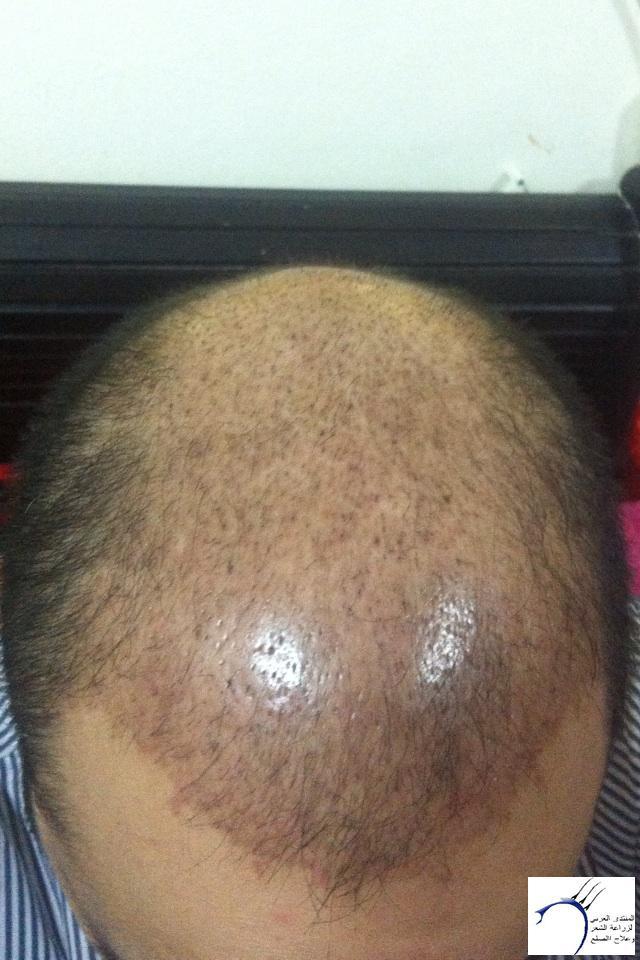 (التحديث الأول شهرين تفاصيل زراعتي www.hairarab.com4e33