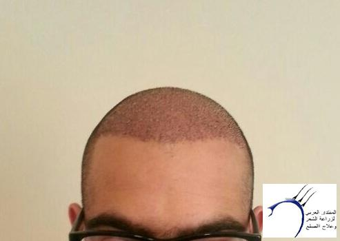 بحمد الله تجربتي الثانيه المختص www.hairarab.com4e91