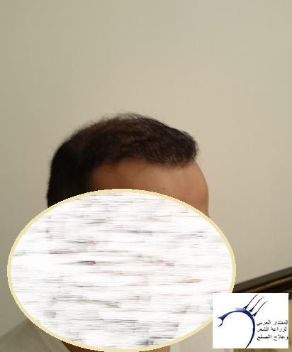 www.hairarab.com4eaa