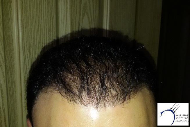 (تحديث الشهر تجربة زراعة الشعر www.hairarab.com4fab