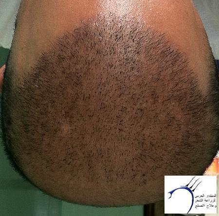 واخيرآآآآ (تحديث www.hairarab.com508b