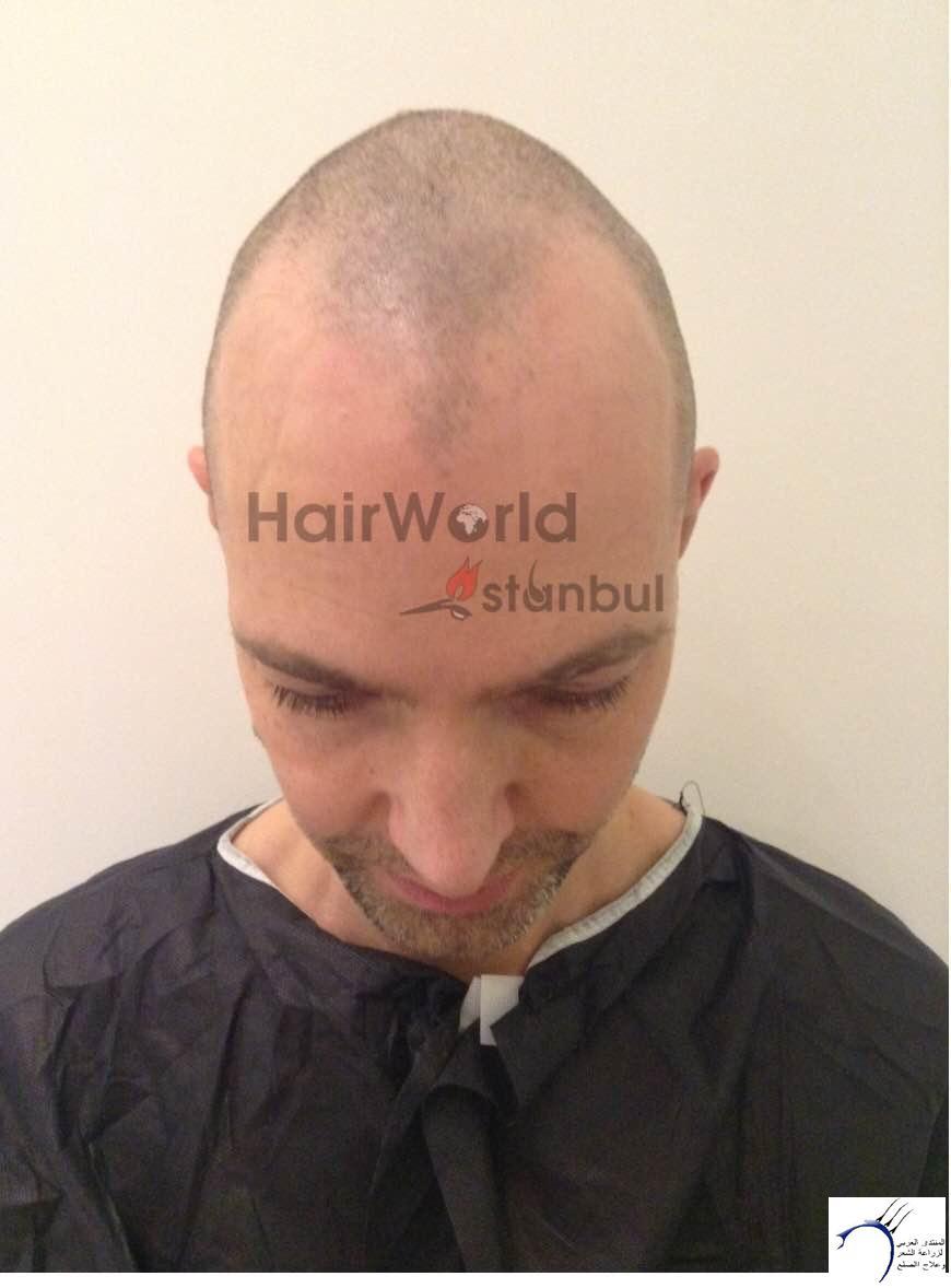 نتيجة زراعة 3700 بويصلة لشخص www.hairarab.com5243
