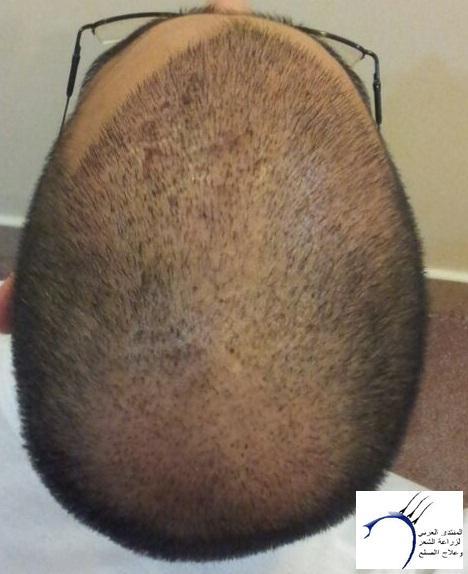www.hairarab.com530a
