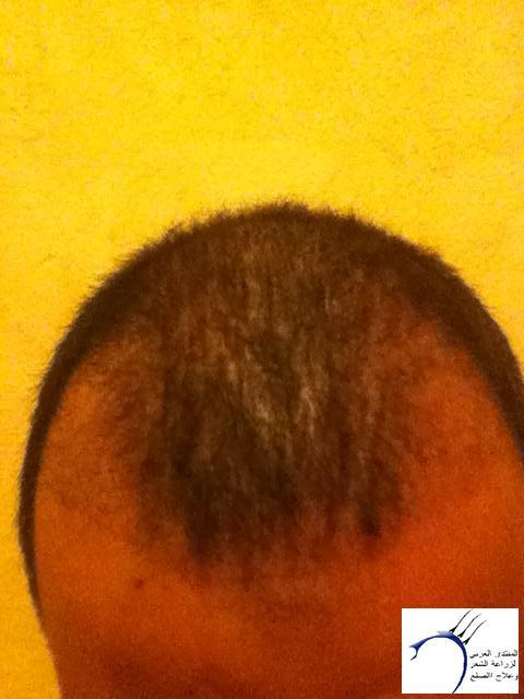 تجربتي لزراعة الشعر الدكتور Tayfun www.hairarab.com53fd