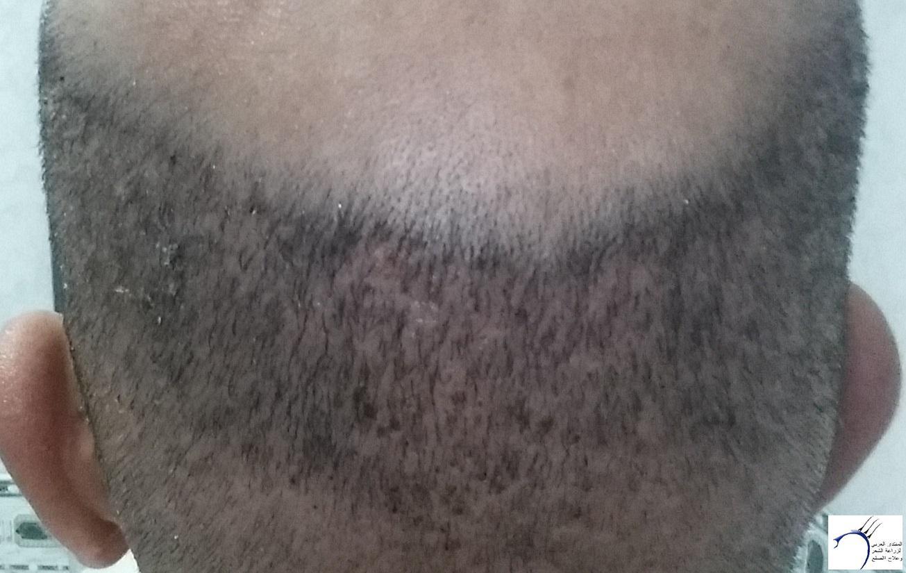 زراعتي الأخصائي محمد جوتشلو بتاريخ www.hairarab.com5575