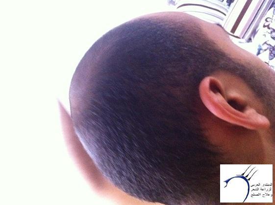زراعتي cevrehastanesi www.hairarab.com55a7