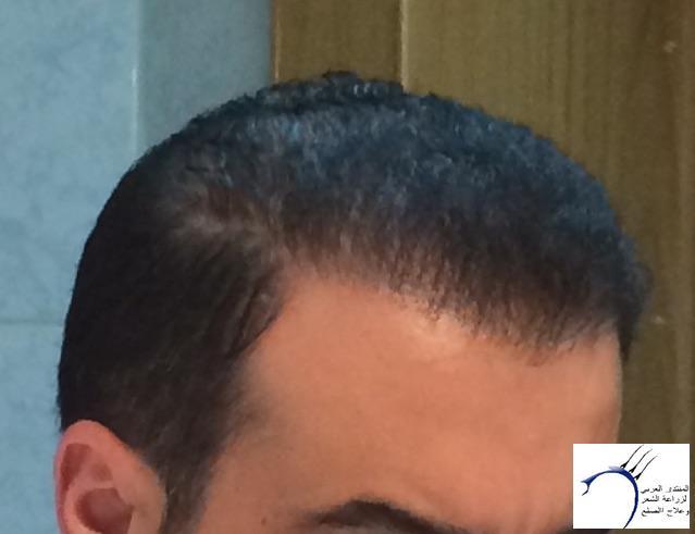 تجربتي محمد قوتشلو ...الشهر العاشر www.hairarab.com55c5