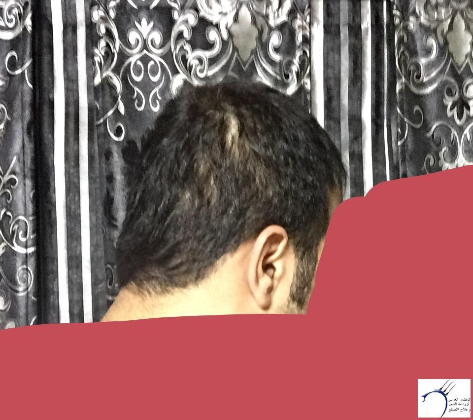 تجربتي رويال تحديث الشهر الرابع www.hairarab.com56d6