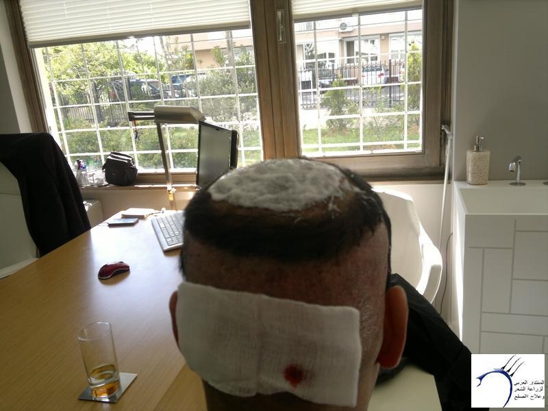 تجربتي لزراعة الشعر تركيا الدكتور www.hairarab.com574d